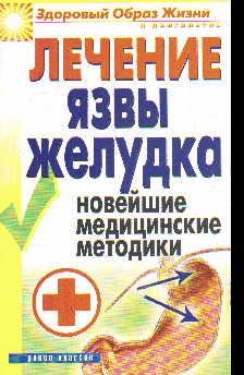 Лечение язвы желудка. Новейшие медицинские методики